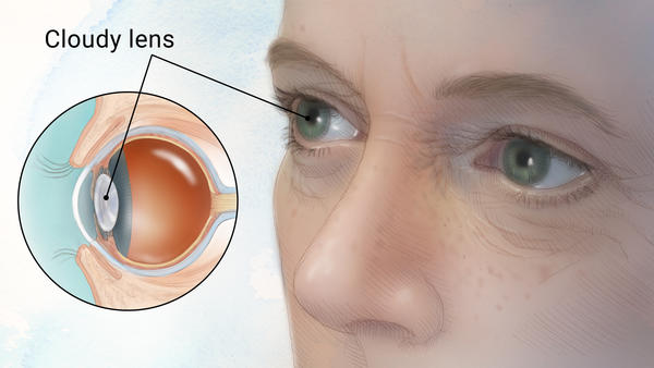 A diagram of cataracts